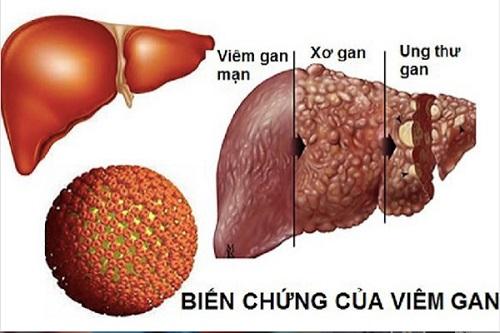 Người bệnh viêm gan B không được ăn những thứ này
