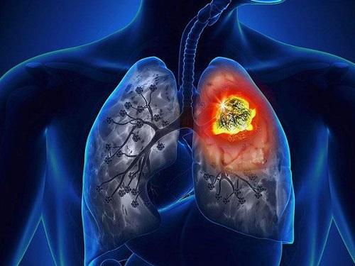Dấu hiệu nhận biết bệnh viêm phổi cấp